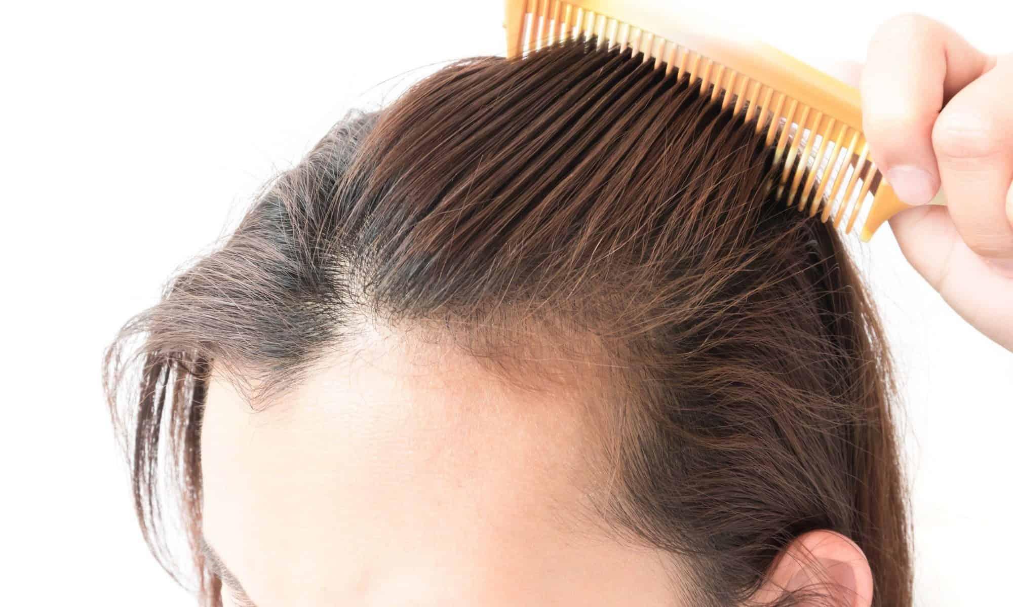 علاج صلع الشعر على الطريقة الماليزية